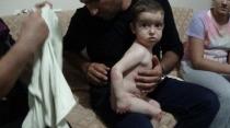 2 Yaşındaki Muhammet Ali'nin El ve Ayakları Eriyor