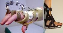 Iğdır'da  Ortopedik Protez Ve Ortez Programı Açıldı